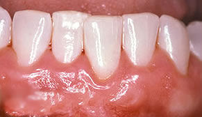 Gum Grafting After Photo