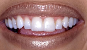Cosmetic Dentistry After Photo