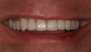 Dental Crowns After Photo