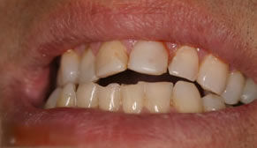 Full Mouth Reconstruction Before Photo