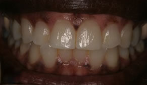 Gum Bleaching Before Photo