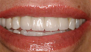 Implants and Veneers After Photo