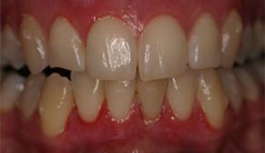Gum Bleaching After Photo