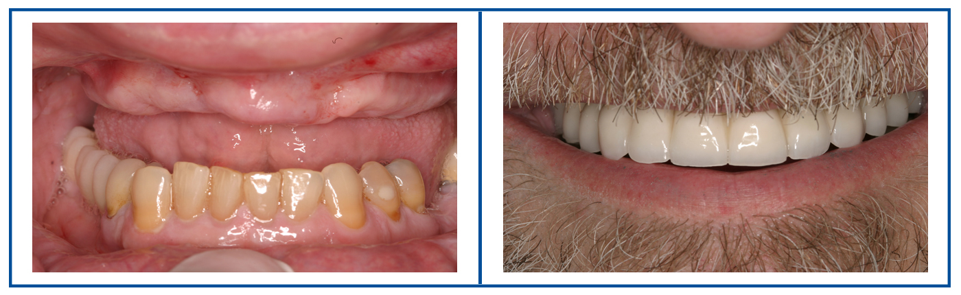 free dental implants consultation before after