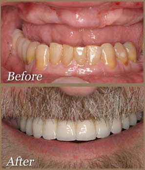 Cost Of Full Mouth Of Dental Implants In Los Angeles