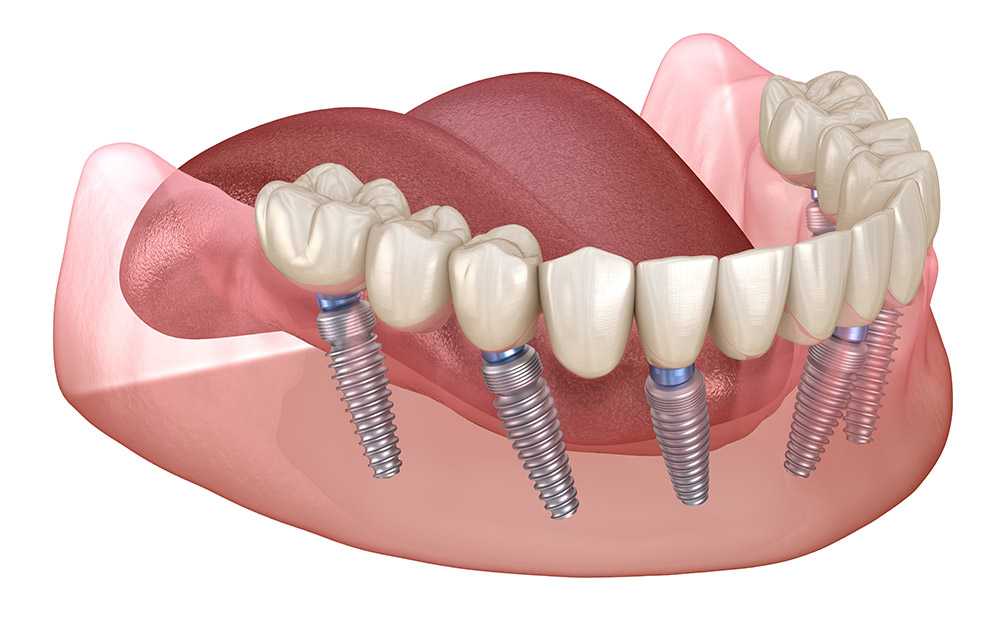 All on 6 Implants, full arch
