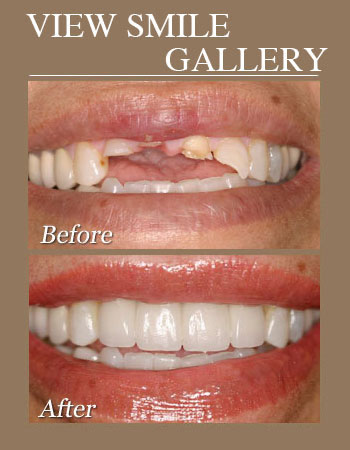 Veneers before and afters