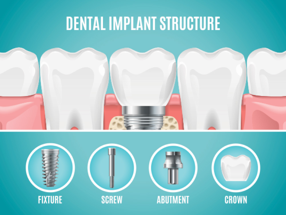 tooth implant structure